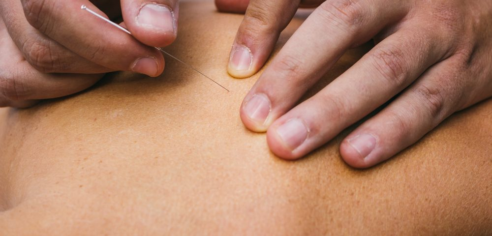 Physiotherapy Treatment Dry needling